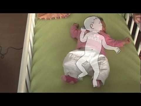 Asymmetrische Tonische Nekreflex. Als baby's hoofdje naar links wordt gedraaid, strekken linkerarm en linkerbeen en buigen de rechterarm en rechterbeen.