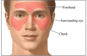 Remedies to Stop Sinus and Strep Infections in Their Tracks!