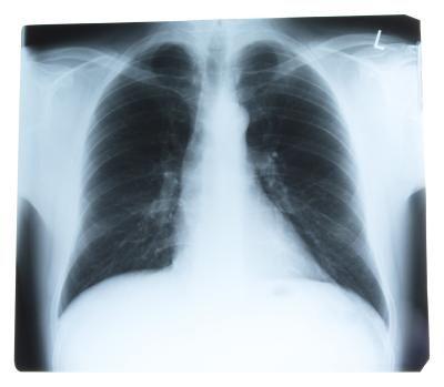 Causas de dolor en el cuadrante superior izquierdo del abdomen bajo las costillas | LIVESTRONG.COM en Español