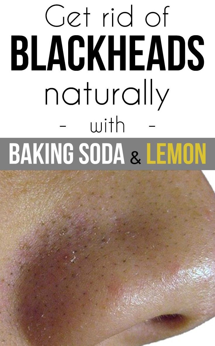 Can Baking Soda Get Rid Of Acne