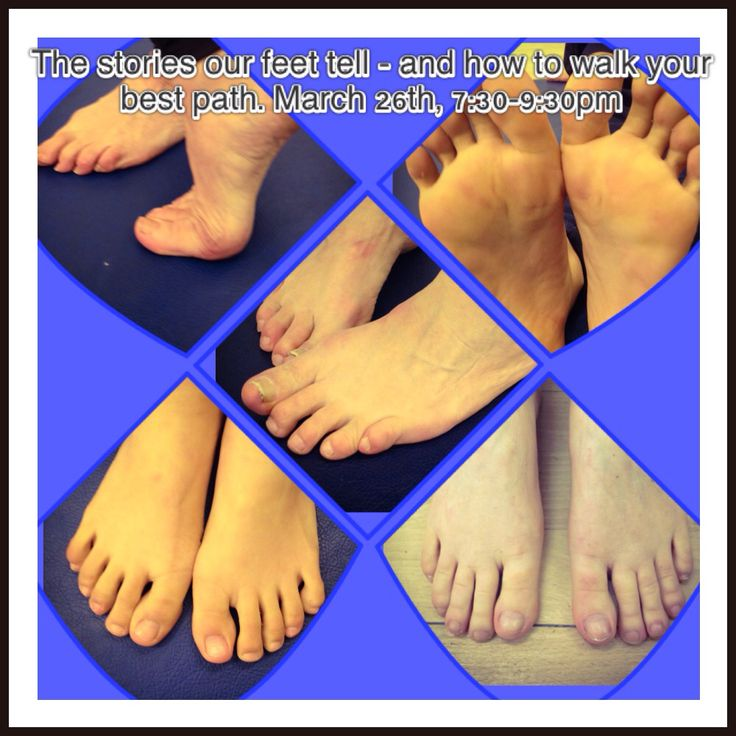 Put your best foot forward!  Unleash your feet and learn to look, listen and feel what your feet are saying about the health of your body, mind and soul.  26th March, 7:30pm-9:30pm, Lewes.  A seminar to reveal the messages your feet may be telling you.