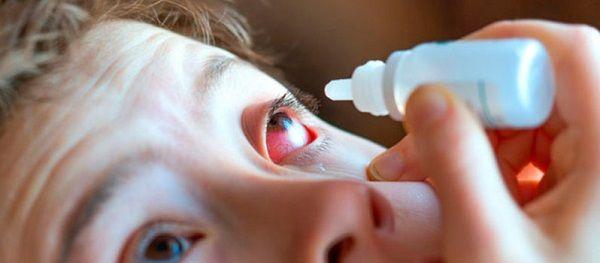 Alertan casos de conjuntivitis viral