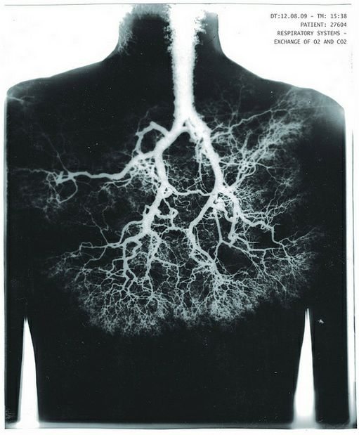 Who ever thought that the respiratory system could look like a tree?