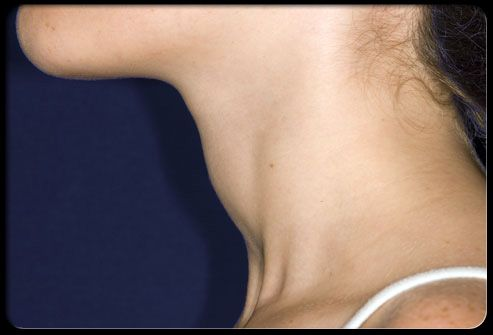 A woman's profile showing a swollen thyroid. A goiter is an enlargement of the thyroid gland, As shown here; an enlarged thyroid can be seen as a swelling in the front of the neck. A goiter can occur both as a result of hypothyroidism and hyperthyroidism. It can sometimes also result from tumors or nodules that develop within the thyroid gland.