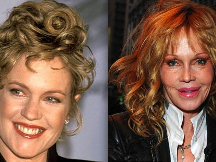 Melanie Griffith Plastic Surgery Gone Wrong - http://surgeryforceleb.com/35-melanie-griffith-plastic-surgery-gone-wrong.html : #PlasticSurgeryGoneWrong Melanie Griffith plastic surgery is meant to improve physical appearance yet gone wrong and turn into disaster just like what you can see on before after photos. Melanie Griffith is an American actress. She was nominated for an Academy Award and won a Golden Globe for her performance in the film...