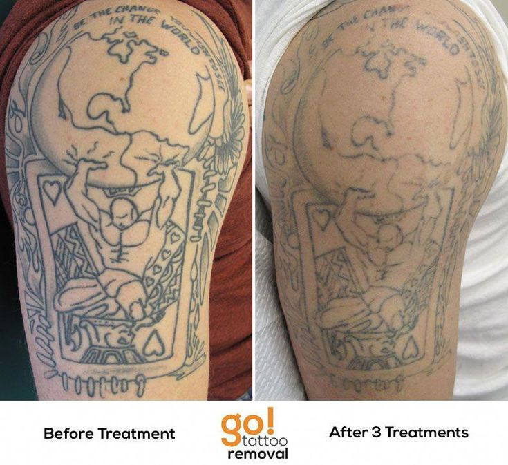 3 laser tattoo removal treatments done we just completed