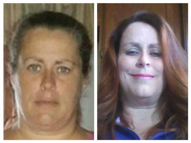 While on my healthier journey I have: been off all daily GERD medication and migraine medication Fibromyalgia flare ups are less and less  have more energy  www.LoseTheFatWithJax.com  #weightloss #skinny #health #beauty #skinnyfiber #testimony #b/a #beforeafter #appetitesurpressant #waterweightloss #90daychallenge