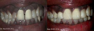 A beautiful Smile after a Painless Day at Unicare Center for Cosmetic & Implant Dentistry!