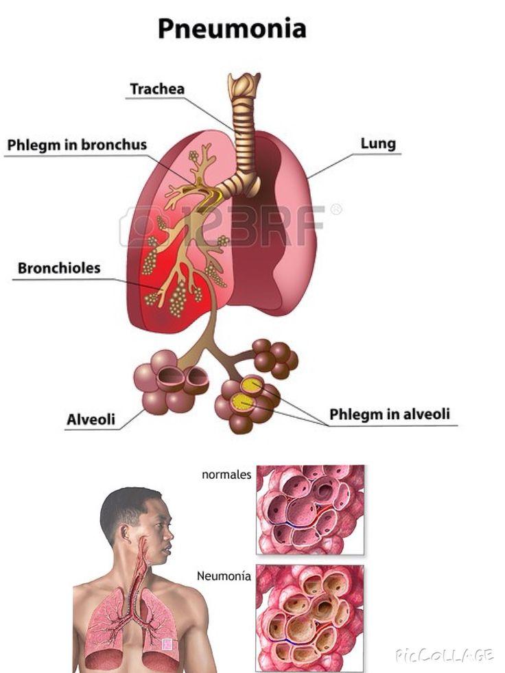34 best Efemérides en Salud images on Pinterest | Diabetes