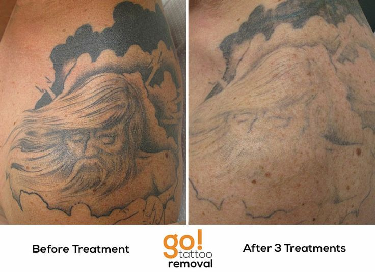 After 3 laser tattoo removal treatments we have