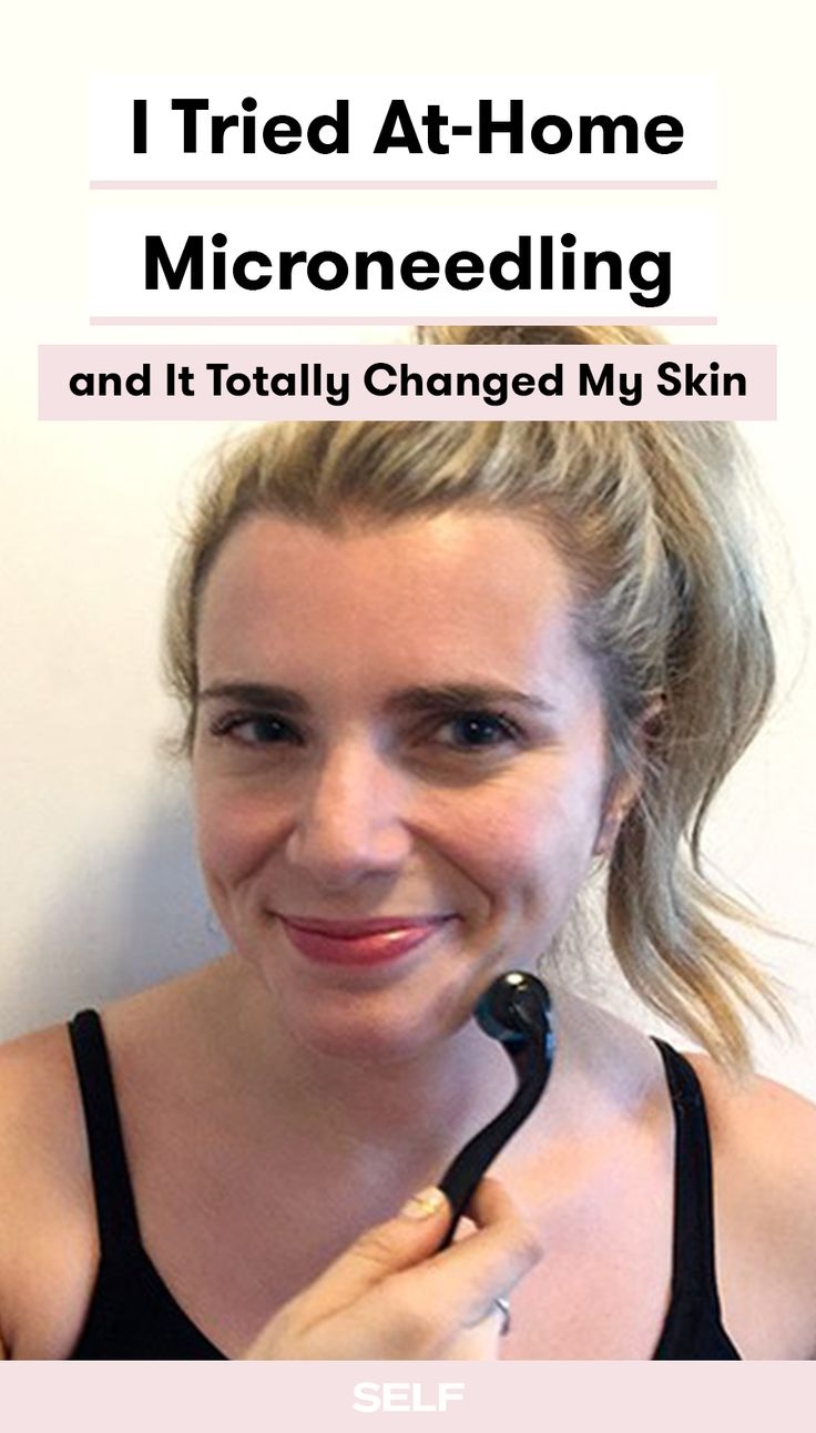 Thinking about trying microneedling at home? Check out this editor's before-and-after after her treatment. This product only costs $30!