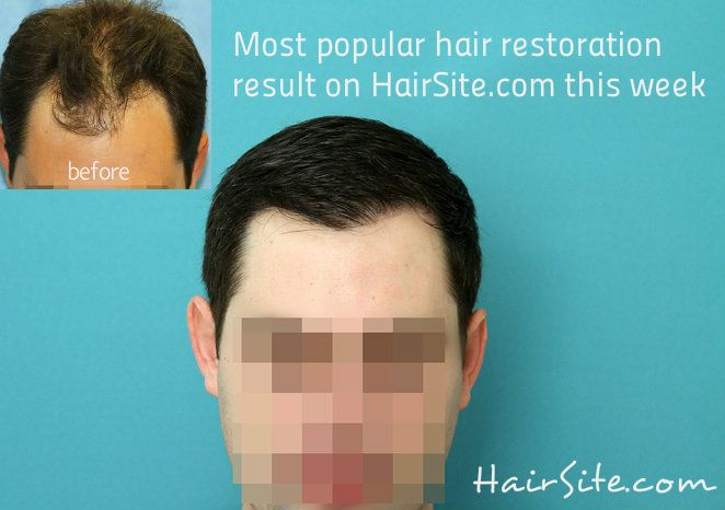Most popular hair restoration result this week on www.HairSite.com, find out more about this and other hair restoration transformation.