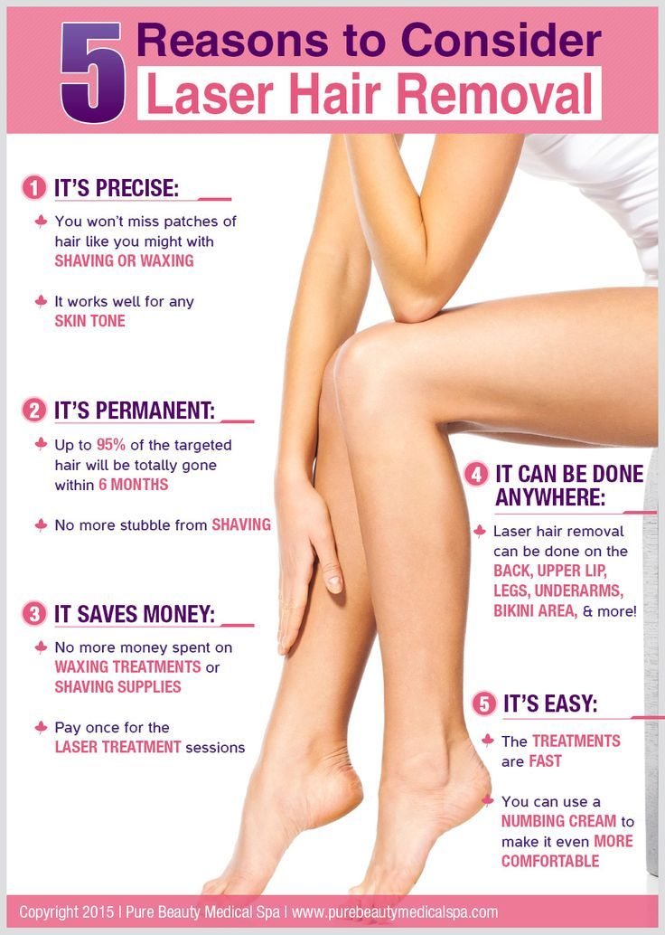 5 Reasons to Consider Laser Hair Removal: