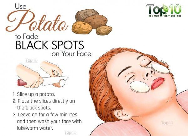potato for black spots