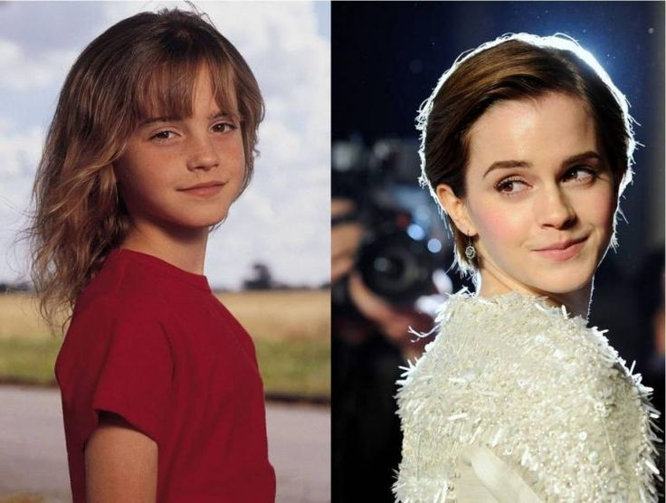 Child Stars Who Turned Out HOT! | PressRoomVIP - Part 11 I just gotta say, here, Emma looks better as a CHILD!!!! I think it's her short MANISH LOOKING HAIR-DO & a complete lack of make- up!!!