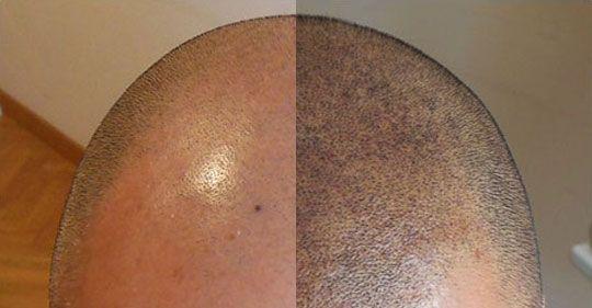 Vous souffrez d'une calvitie , d'une perte de cheveux , un manque de densification capillaire, d'une cicatrice dans le cuir chevelu BAHIA DERM a la solution : Cabinet Internationnal de dermopigmentation réparatrice LA DERMOGRAPHIE Inspirée du tatouage, la dermopigmentation est une technique qui consiste à implanter des pigments dans le derme à l'aide d'un dermographe.