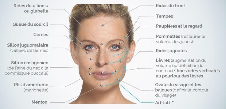 Les injections d'acide hyaluronique Avec l'âge, l'organisme subit une réduction de collagène et d'acide hyaluronique. Combinés à une perte de gras au niveau du visage et une diminution de la masse osseuse, des facteurs liés au vieillissement cutanée, comme l'exposition aux radicaux libres (soleil, stress, pollution aérienne et alimentaire) et les habitudes de vie, laissent inévitablement des traces sur la peau. #rides #acide_hyaluronique #clinique_esthétique #om_signature