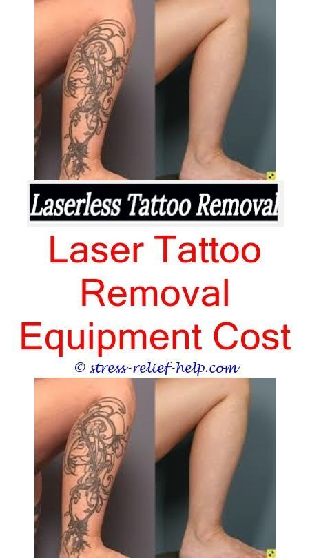 20 best before and after photos images on pinterest for How much does a tattoo gun cost