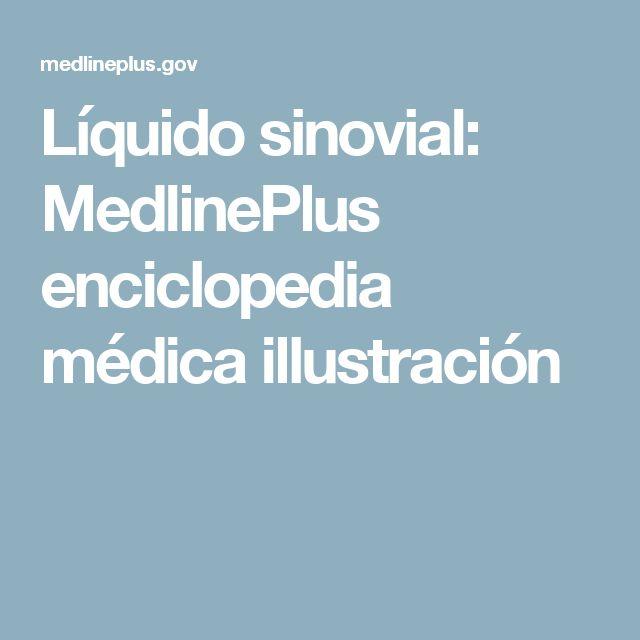 Líquido sinovial: MedlinePlus enciclopedia médica illustración