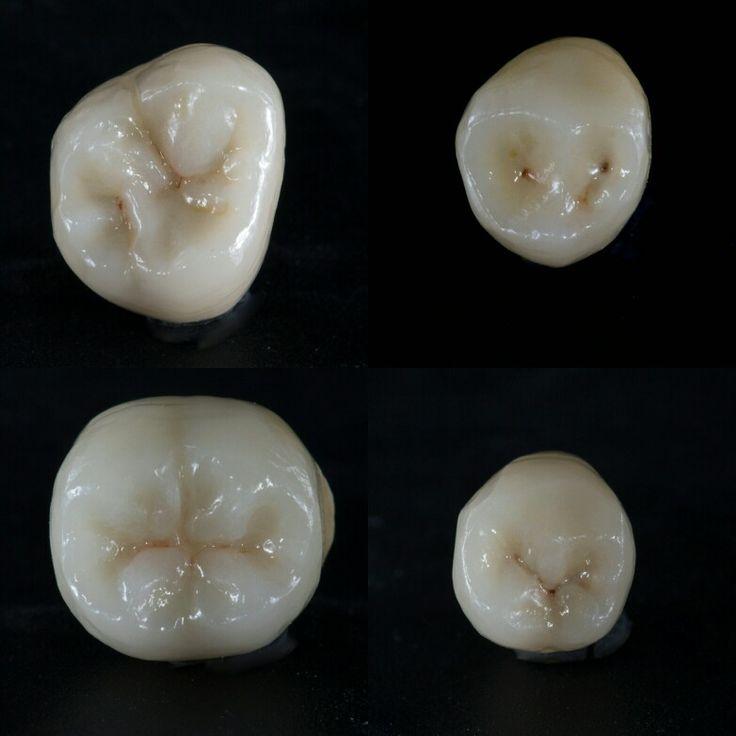 коронка зубная металлокерамическая. Самара. Ново-вокзальная 269 8-846-990-88-56