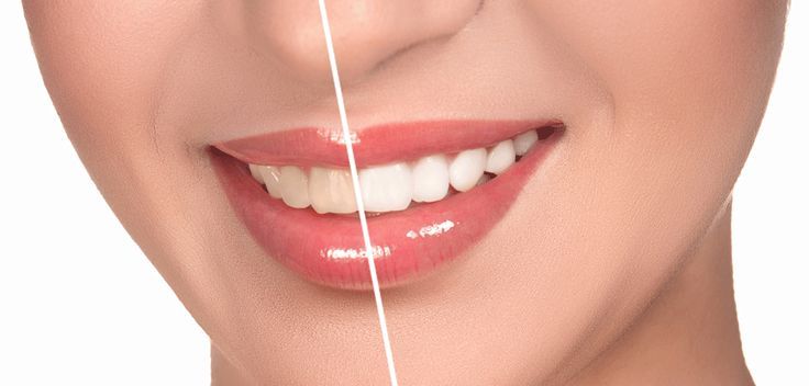 Do you know advantages of Porcelain Veneers? It is a daunting task to identify the highly-able and most reliable dental care and it is specialized in applying porcelain veneers.