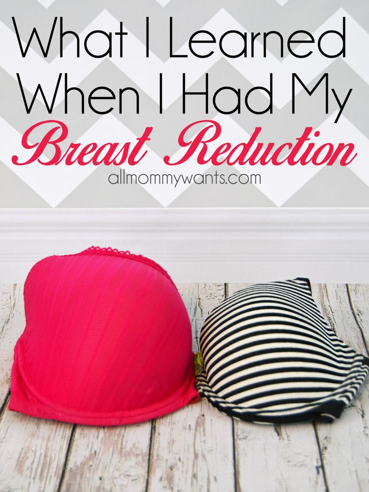 What I Learned About My Breast Reduction & Recovery