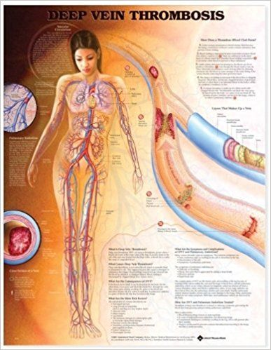 Deep Vein Thrombosis Anatomical Chart Medical Books Free