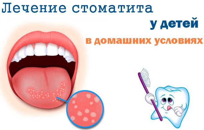 Белый налет во рту у ребенка - это стоматит. Мало кто знает, что бывает несколько разновидностей болезни, которые лечатся по-разному. Расскажем, как их лечить.