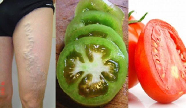 Incrível! Com a ajuda de um simples tomate, você pode se livrar das varizes