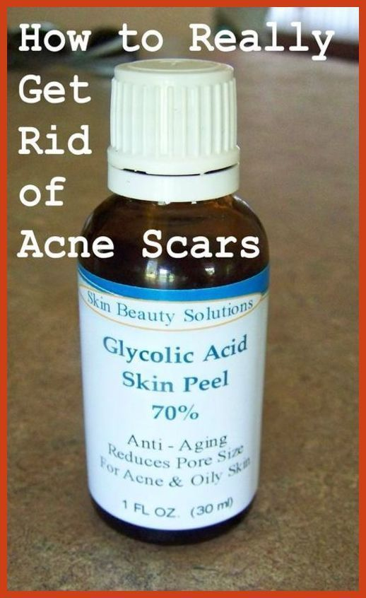 Acne Scar Removal - Acne Treatment With the Nature's Product ** More info could be found at the image url. #skincare #NaturalAcneTreatment #acnescarremoval