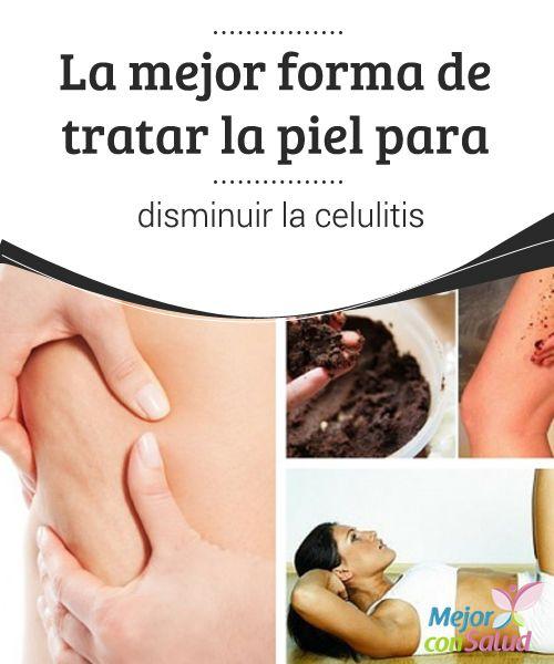 La mejor forma de tratar la piel para disminuir la celulitis   La celulitis es uno de los problemas estéticos que más odiamos las mujeres. No dejes de probar estos consejos para tratarla de forma natural.
