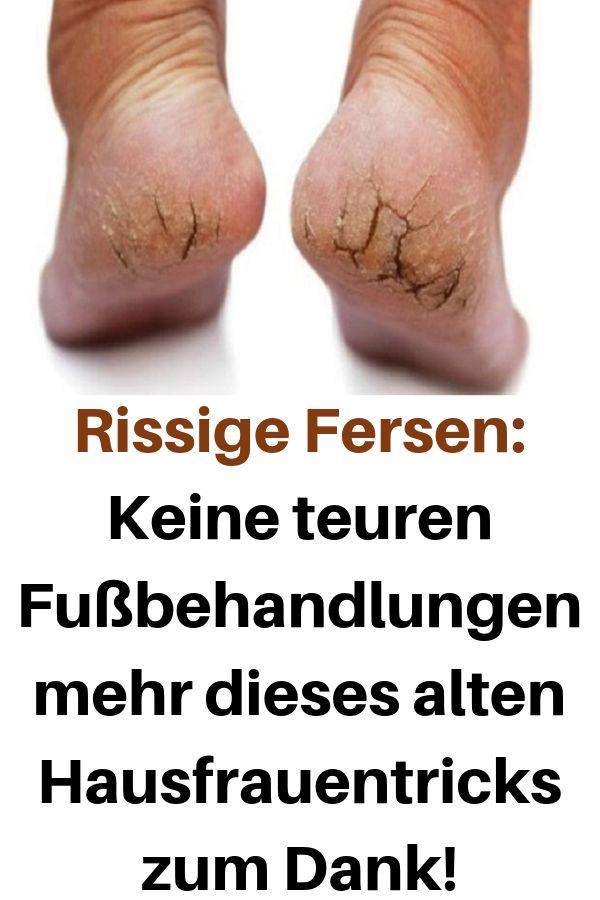 Rissige Fersen: Keine teuren Fußbehandlungen mehr…