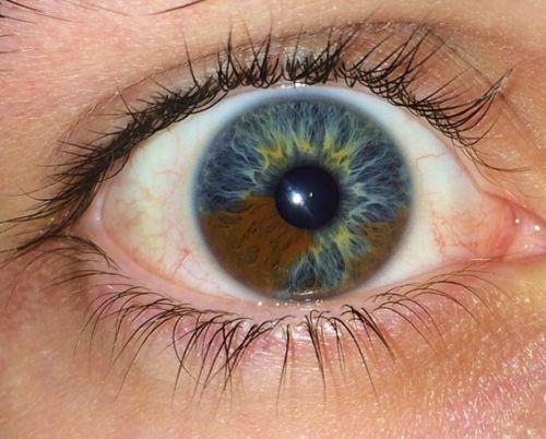 Sectoral Heterochromia Interesting Pretty Eyes Eye