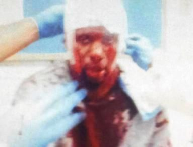 """Chance McRody, pictured here, was viciously targeted and attacked at Rikers Island – reportedly by other inmates. In the past it has been discovered that Rikers Islands Officers were in fact the ones who were """"authorizing and directing"""" such attacks."""