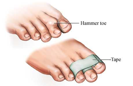 Hammer Toe Taping