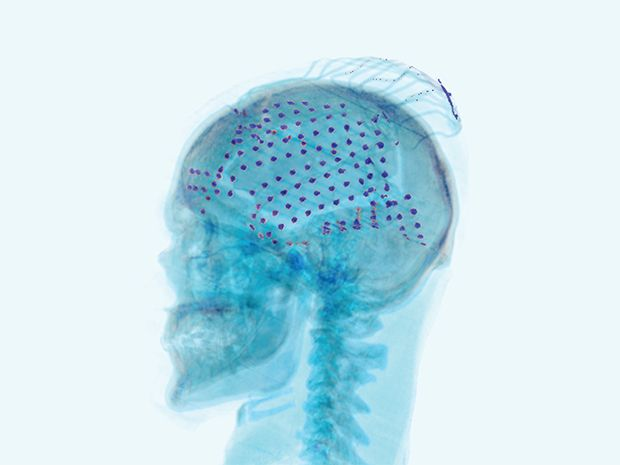 How to Catch Brain Waves in a Net | A mesh of electrodes draped over the cortex could be the future of brain-machine interfaces [The Future of Medicine: http://futuristicnews.com/tag/future-medicine/ DARPA: http://futuristicnews.com/tag/darpa/ Neurotechnology: http://futuristicnews.com/tag/brain/ Neuroscience Books: http://futuristicshop.com/category/neuroscience-books-neurotechnology-books/]