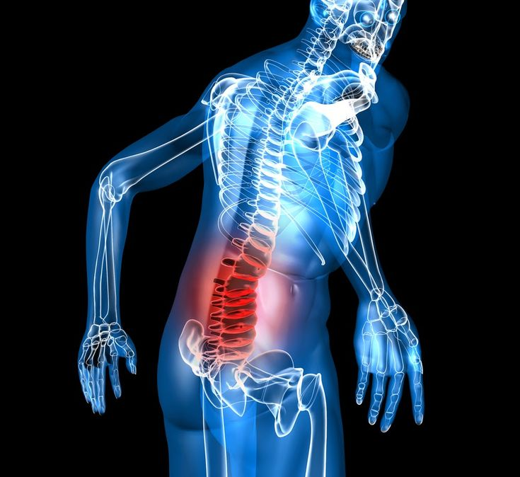 George St Chiropractic: Painful Truth About Managing Back Pain