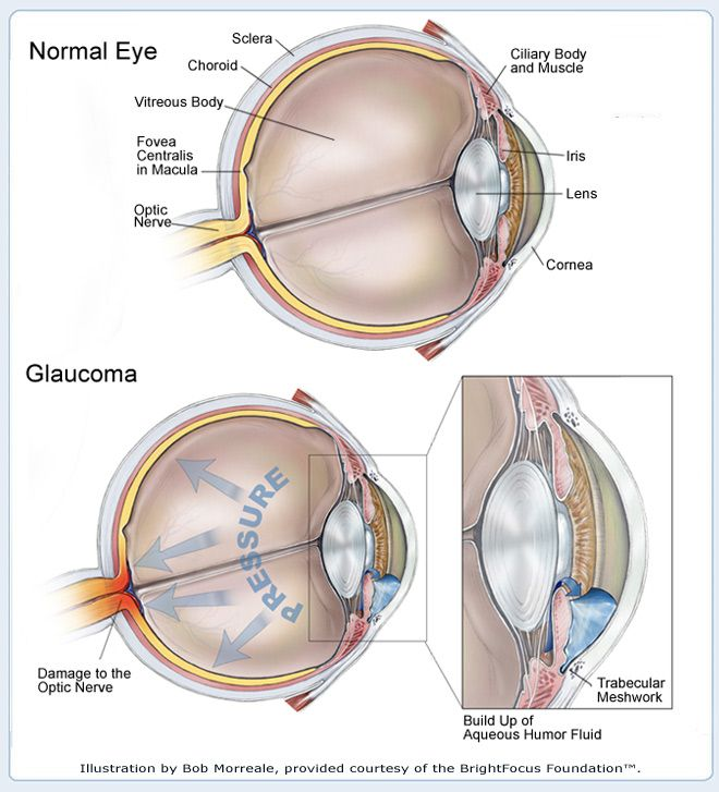 Medical illustration showing how the build up of aqueous humor can damage the optic nerve. #glaucoma