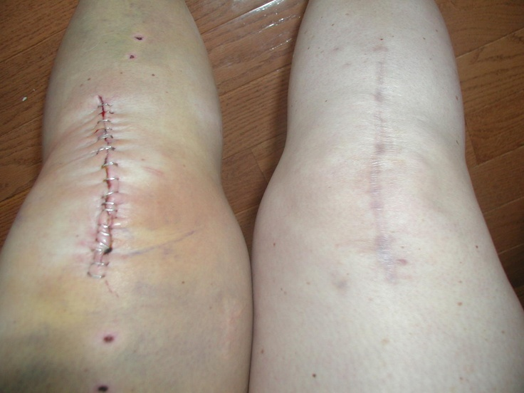 how to avoid keloid scars after surgery
