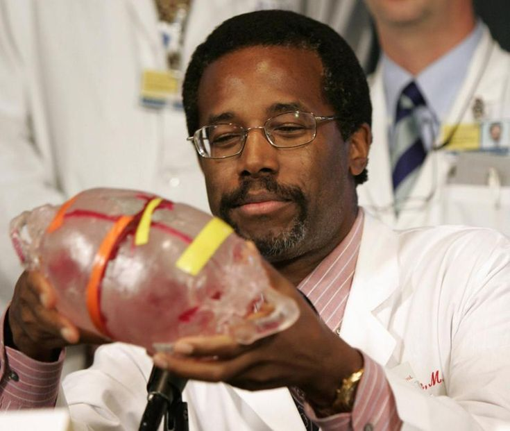 Dr. Ben Carson helds un modelo de los jefes de gemelos unidos durante una conferencia de prensa en 2004.