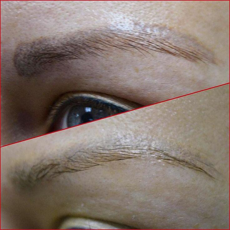 """В """"анамнезе"""": -две неудачные процедуры перманентного макияжа; -неудачная попытка перекрытия tatto пигментом телесного оттенка; -атрофическое рубцевание.  На фото результат двух процедур удаления ремувером Rejuvi.  Стоимость процедуры 8-11 т. При необходимости повторных сеансов -50%. Запись по тел.79857879174 В области удаления неудачного перманентного макияжа и микроблейдинга - у нас нет конкурентов. Мы- лучшие. Не только в России. Нам нет равных в мире.  Мы можем Вам помочь! Мы не будем Вам…"""