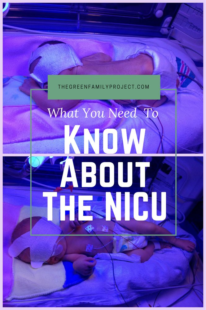 What You Need To Know About The NICU | NICU | twin pregnancy | pregnant with twins | twin mom | twin babies | twin labor and delivery | expecting twins