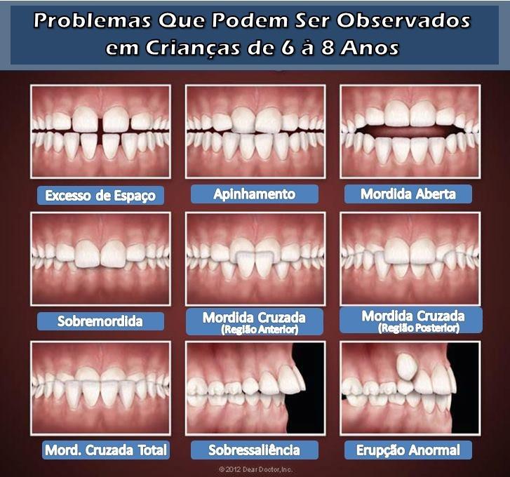 Procedimentos Ortodônticos Preventivos: O que observar. http://www.cetrobh.com/2013/05/Procedimentos-Ortodonticos-Preventivos-O-que-observar.html