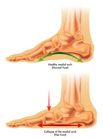 Flat Feet  How can we help Flat Feet?  A great many people are afflicted with flat feet and in most cases it is a genetic condition, that is, something we were born with.   #flat feet #Feet #foot #arch #medial #medial arch #the bones
