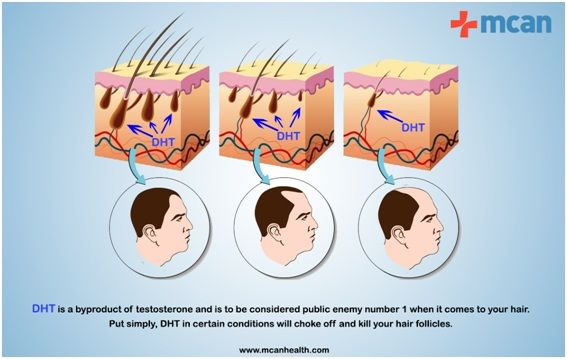 Why Do We Start to Lose Hair? What is the Perfect Age to Get a #Hair_Transplant? Find the answers in this article. http://taproothealthcoaching.com/the-perfect-age-for-a-hair-transplant/ #MCANHealth #hair_transplant_turkey #hair_transplant_istanbul #hair_loss_treatment