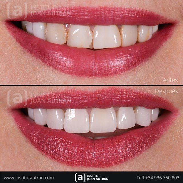 Finalizamos La Semana Devolviendo Una Nueva Sonrisa Con El Tratamiento De Carillas Sin Tallado Top Smile Solicite Una Visita En Nuest Dental Teeth Cosmetics