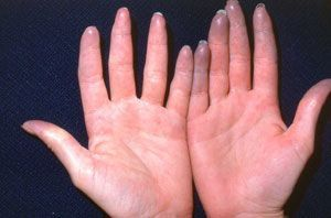 Raynaud's Phenomenon - Cedars-Sinai rythrocyte sedimentation rate (ESR). This blood test determines the rate at which red blood cells settle to the bottom of a tube. A faster-than-normal rate may signal an inflammatory or autoimmune disease. Autoimmune diseases are commonly associated with Raynaud's.