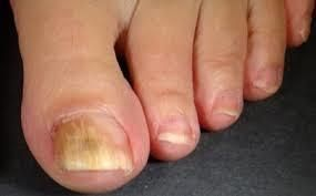 Toenail fungus is a common issue among a lot of people around the country. This happens because the bacteria live under and around the toenails. http://www.huffingtonpost.com/entry/how-to-get-rid-of-toenail-fungus_us_57b3de69e4b014a587fbcd75 #howtogetridofnailfungus
