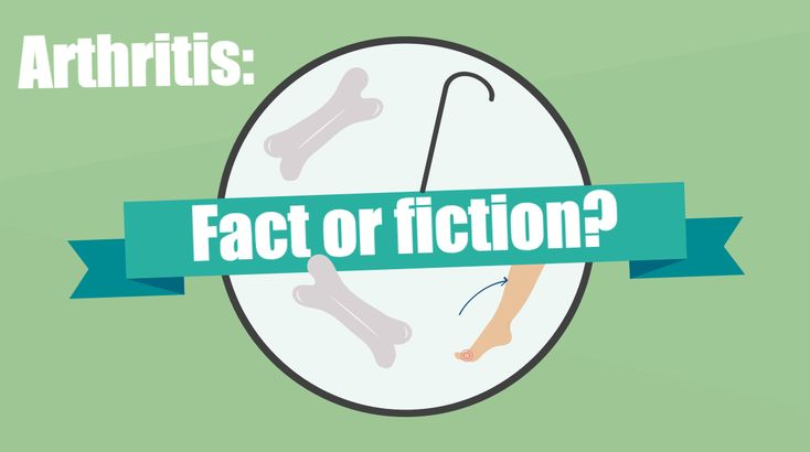 Can you tell arthritis fact from fiction?