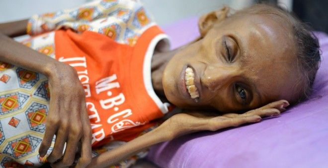 Esta es la imagen del hambre y la malnutrición en Yemen